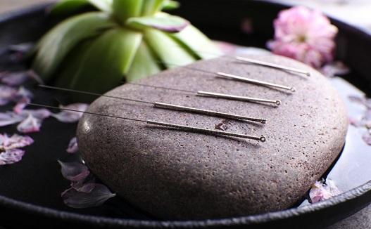 طب سوزنی درمان معجزهگرِ هر دردی است؟